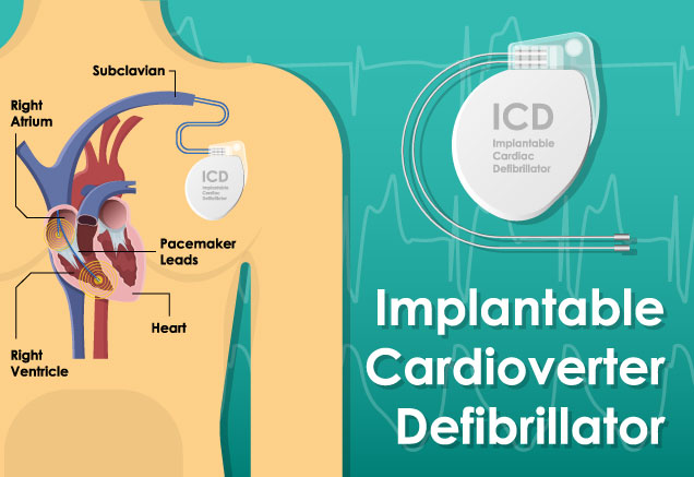 Implantable Cardioverter Defibrillator (ICD) Placement